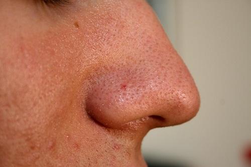 Cách trị mụn đầu đen ở mũi tận gốc