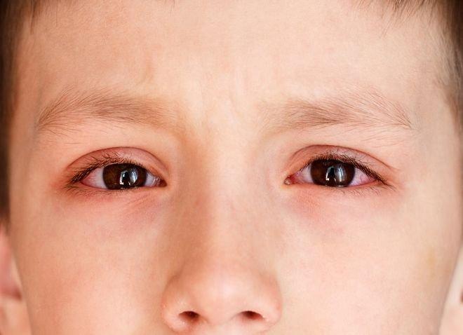 Mách bạn những điều cần biết khi bé bị đau mắt đỏ
